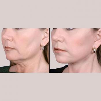 Cosmetic Surgery Clinic in NCR in Delhi
