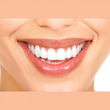 Best Dental Deals in New Delhi