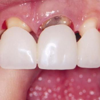 Crowns & Bridges at Amrita Multi Specialty Dental Clinic in Mavelikara