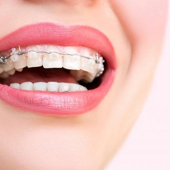 Orthodontics at Amrita Multi Specialty Dental Clinic in Mavelikara