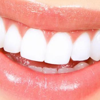 Teeth Whitening at Raihan Dental Speciality Centre in Kayamkulam