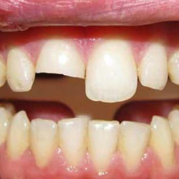 Restoration of decayed , fractured & discoloured tooth at V B Dental Clinic in Haripad