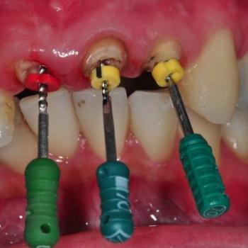 Root Canal Treatment at V B Dental Clinic in Haripad