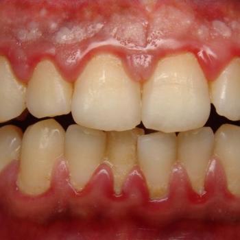Treatment for Gum disease at V B Dental Clinic in Haripad