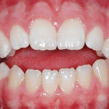 Treatment for malocclusion(disoriented-protruded teeth) at V B Dental Clinic in Haripad