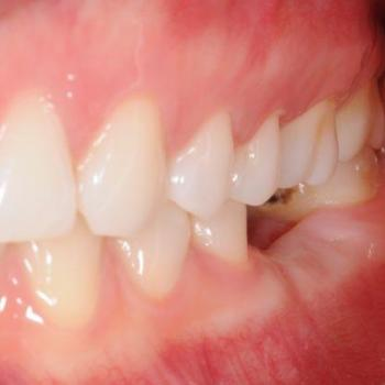 Treatment for missing teeth(Complete or Partial) at V B Dental Clinic in Haripad